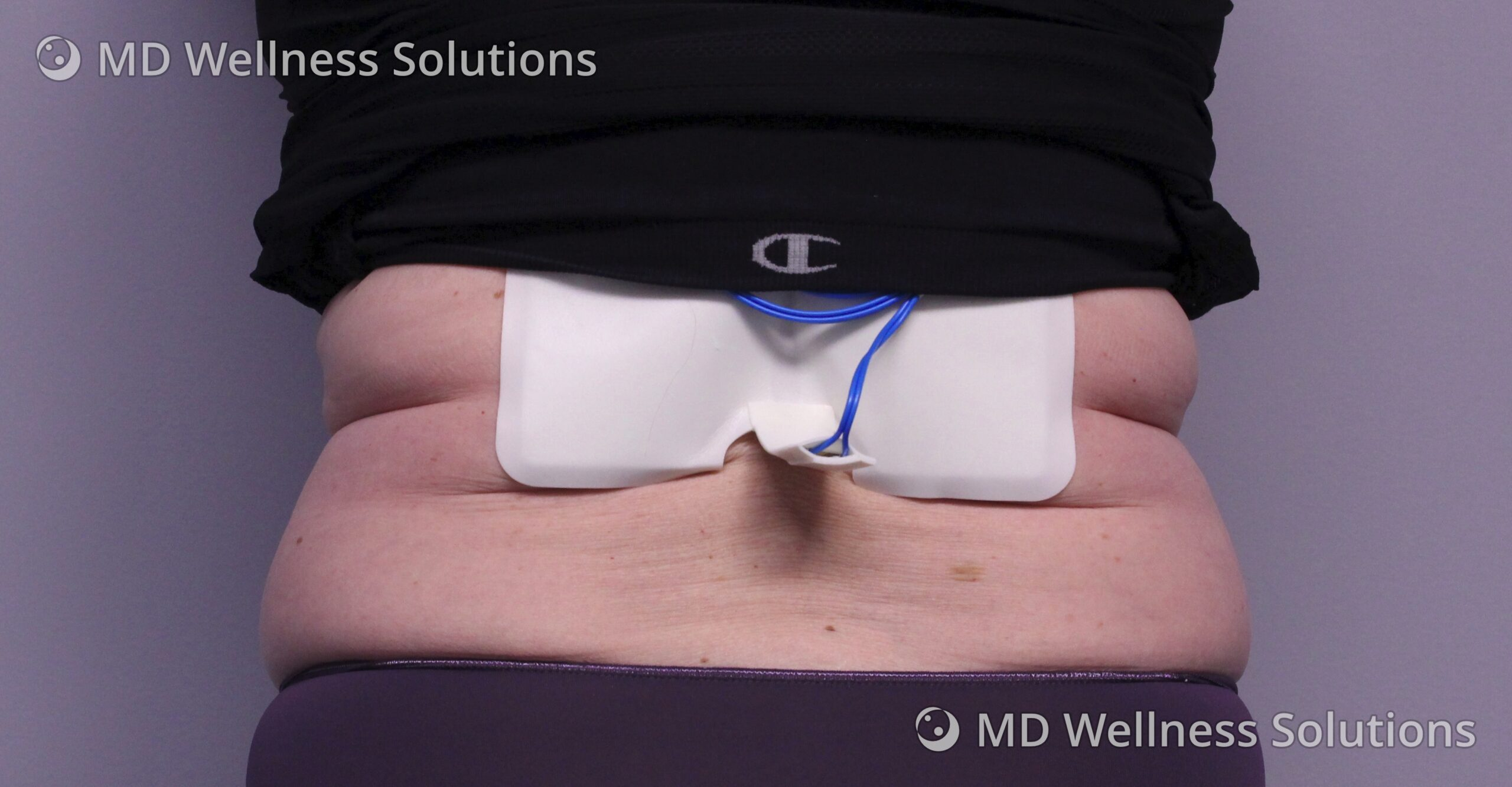 55-64 year old woman before FlexSure body contouring treatment