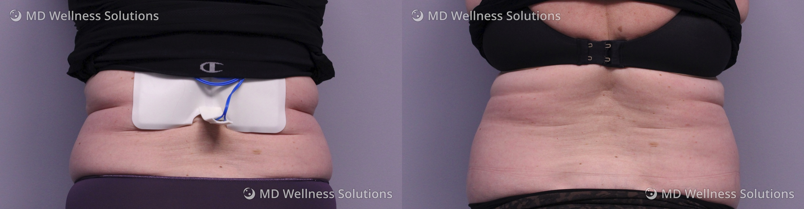 55-64 year old woman before and after FlexSure body contouring treatment