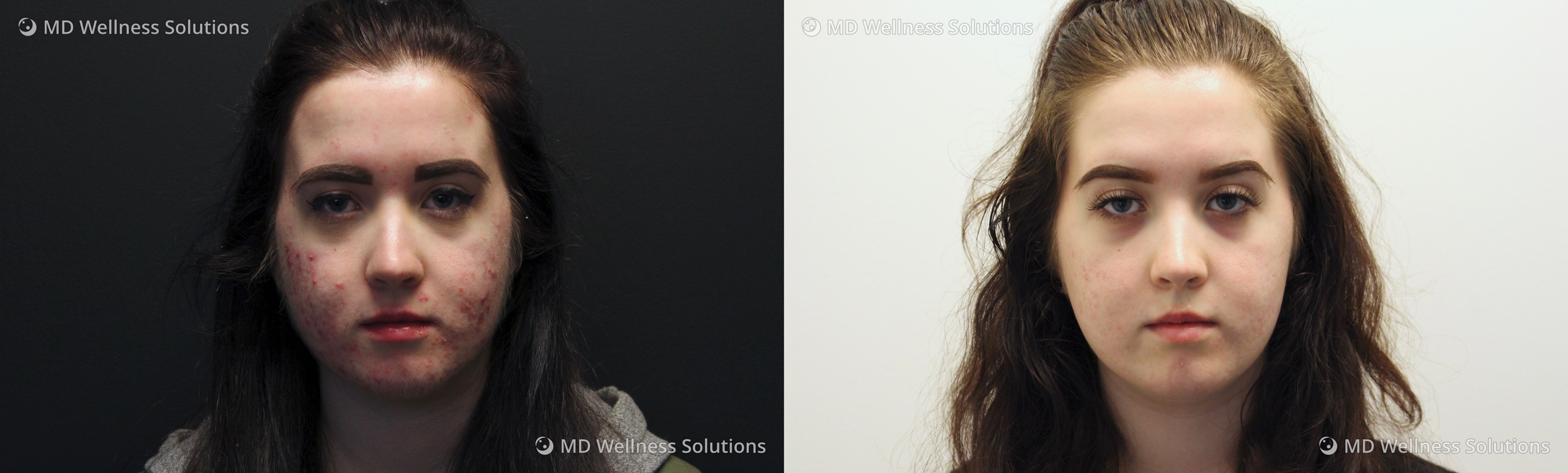18-24 year old woman before and after acne treatment