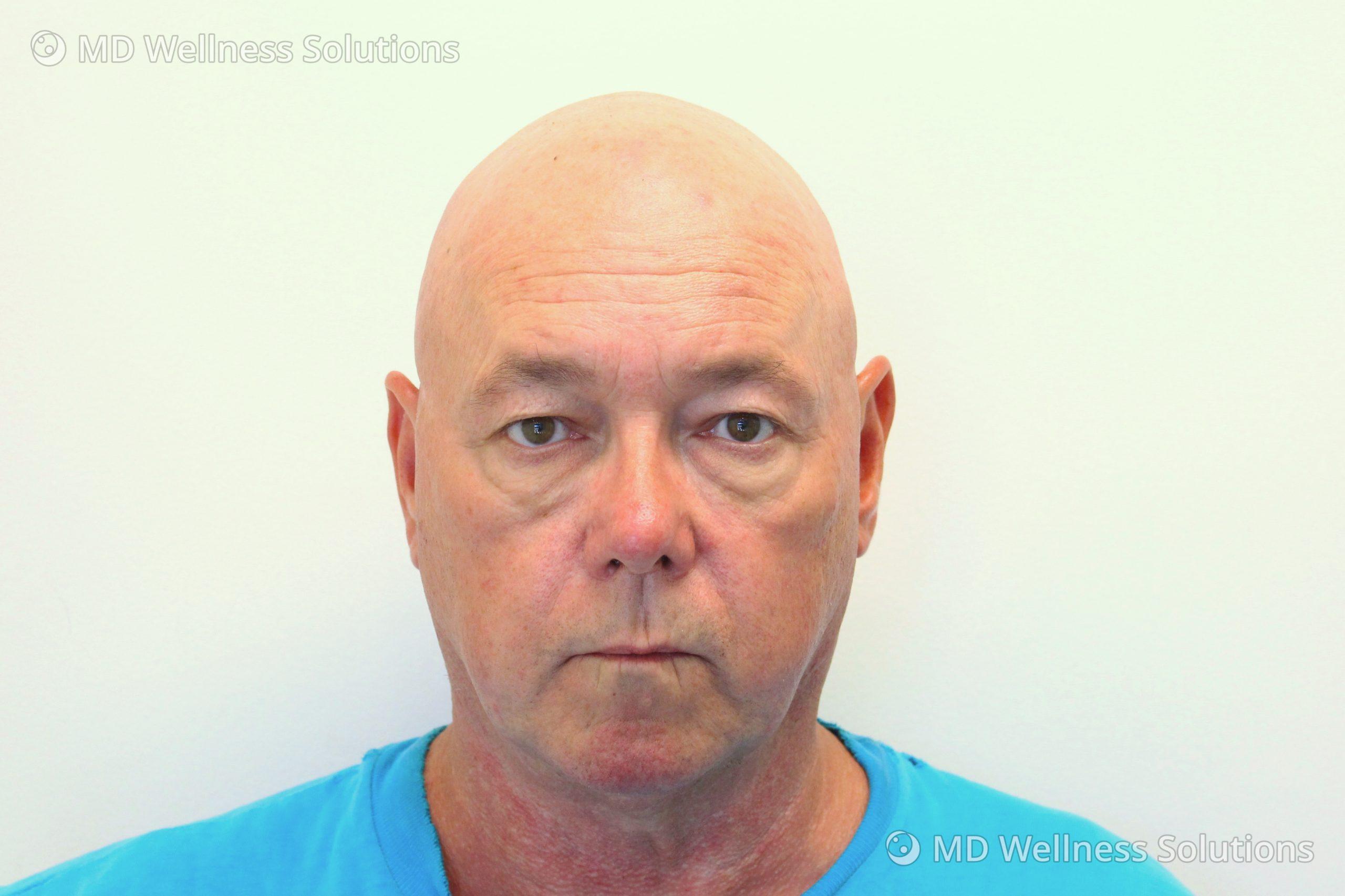 55-64 year old man after dermal filler treatment