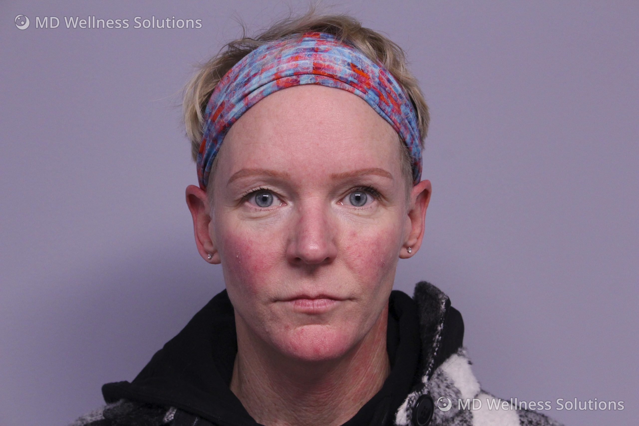 45-54 year old woman after rosacea treatment