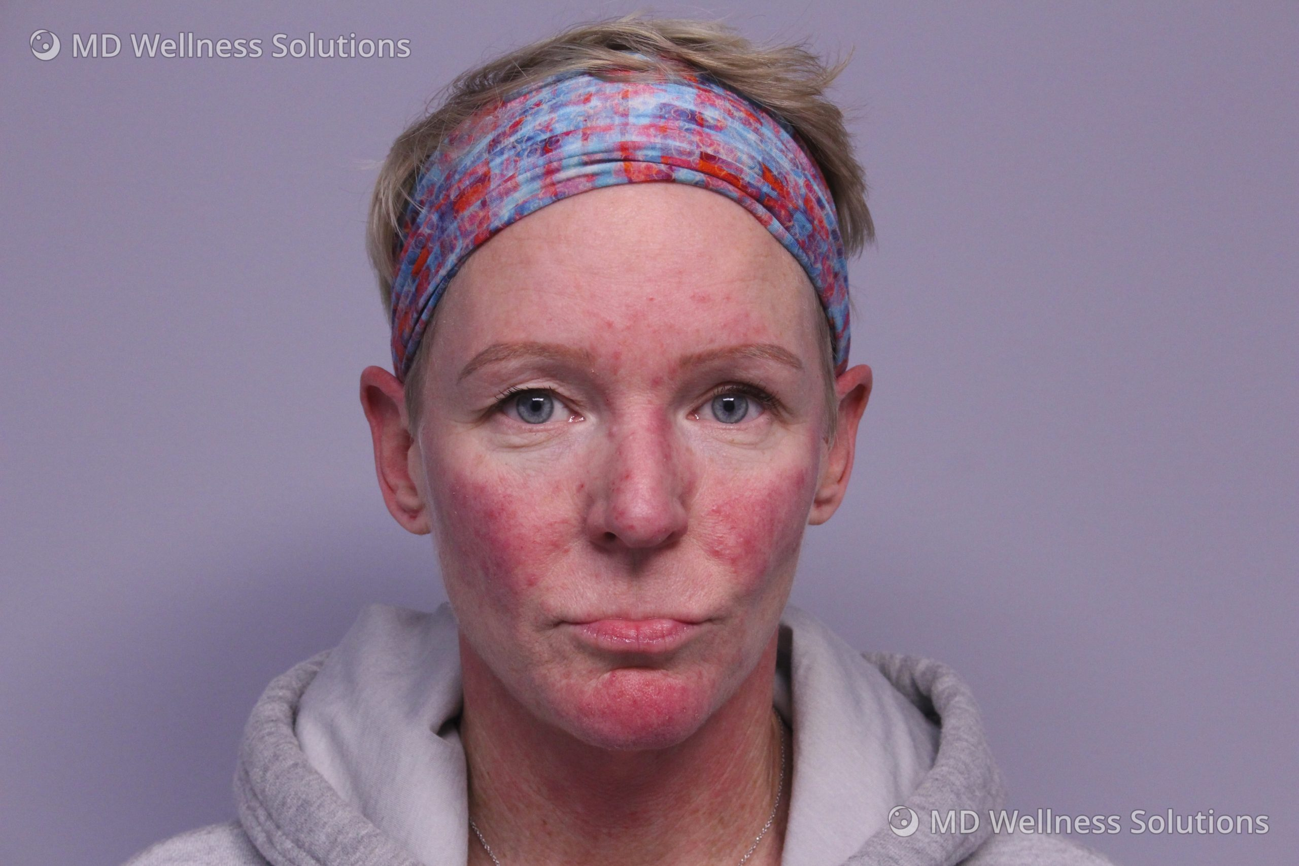 45-54 year old woman before rosacea treatment