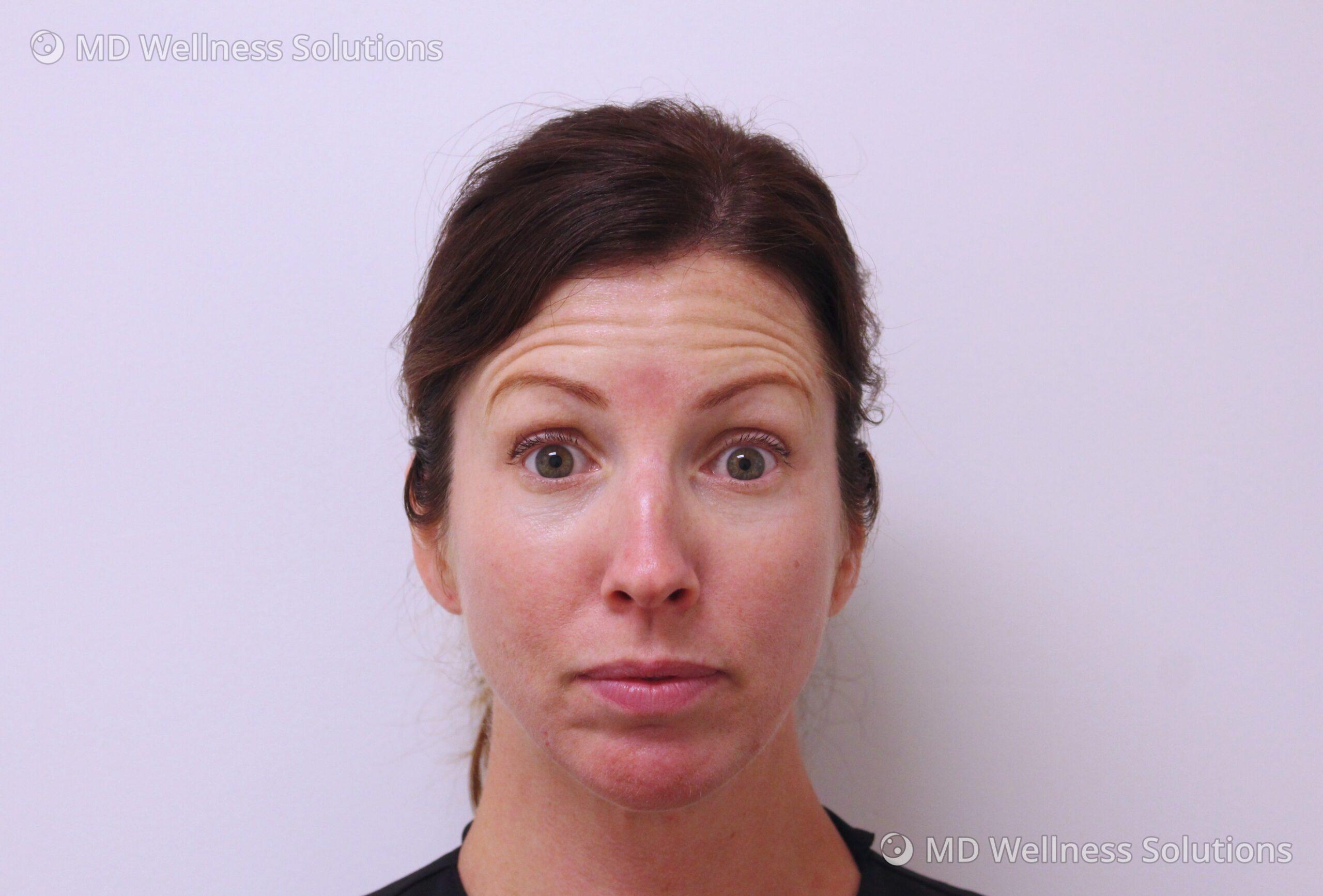 35-44 year old woman before neurotoxin treatment