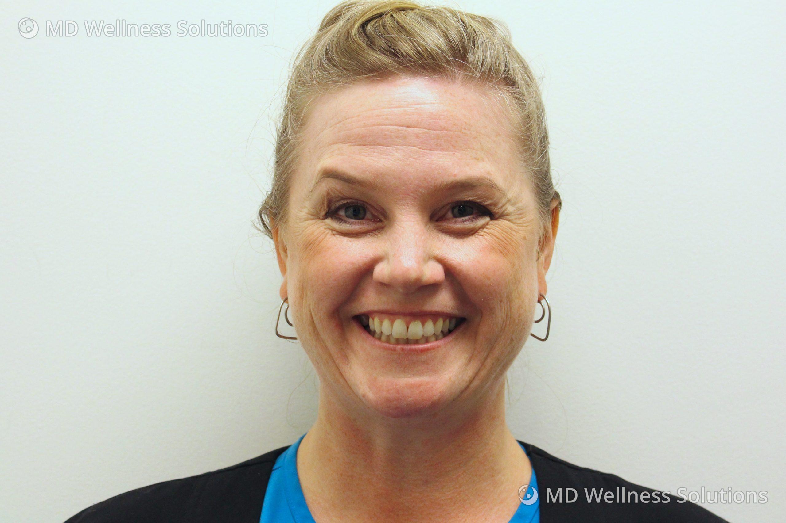 45-54 year old woman before neurotoxin treatment