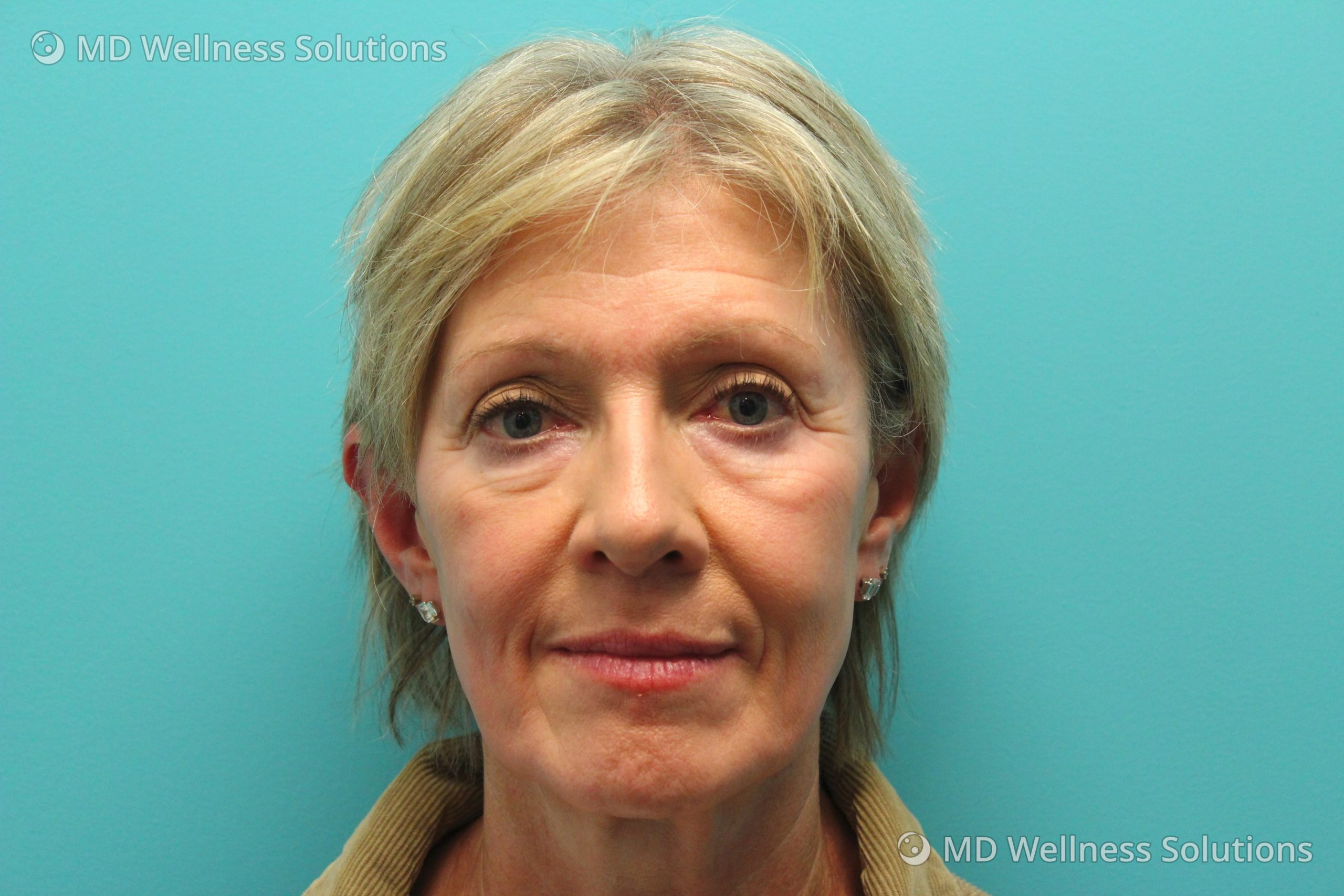 55-64 year old woman before dermal filler treatment