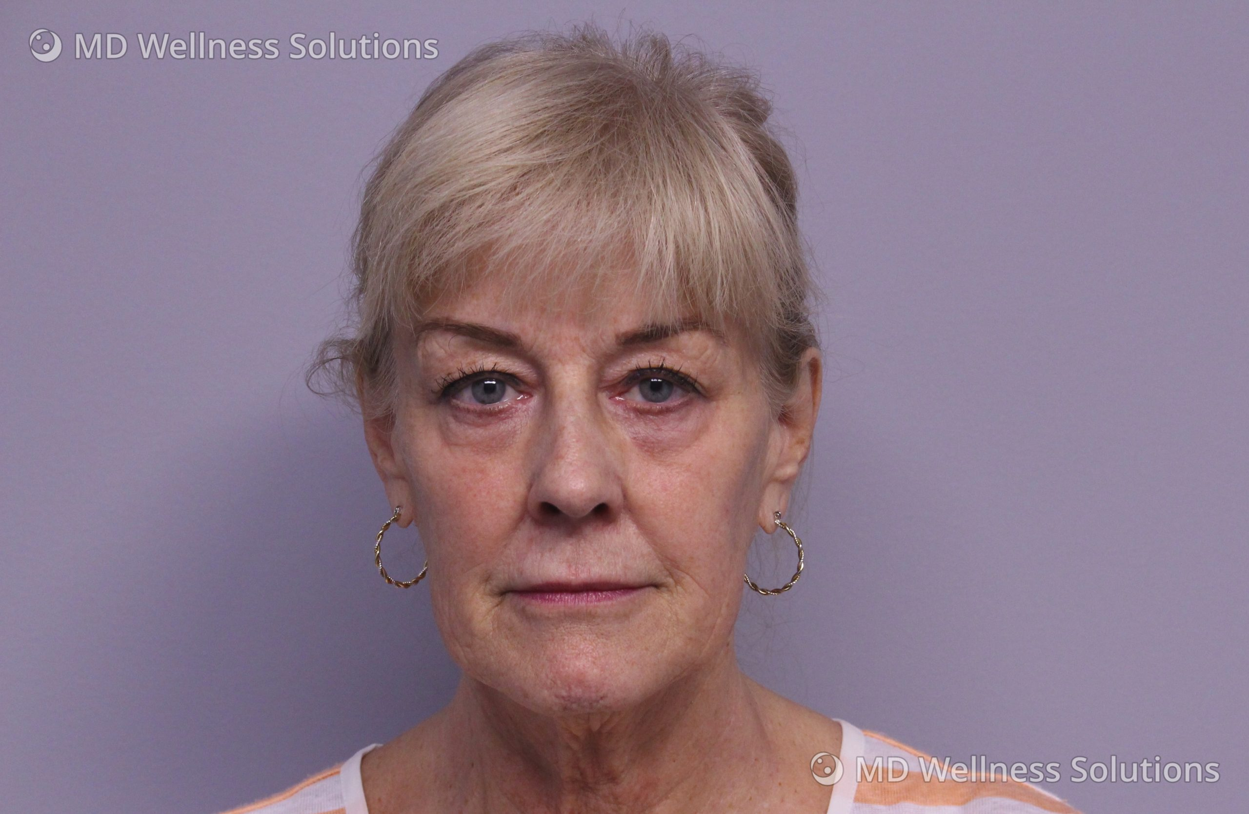 65-74 year old woman after dermal filler treatment