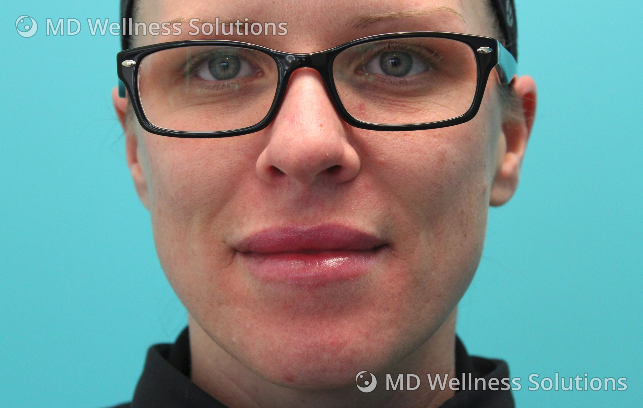25-34 year old woman after lip filler treatment