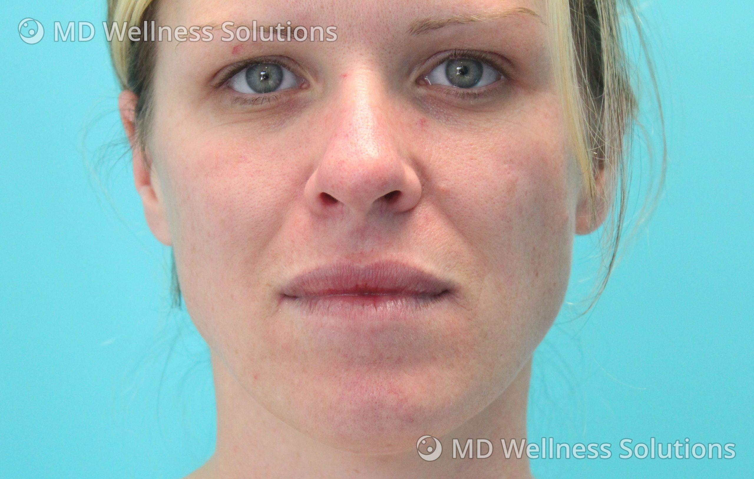 25-34 year old woman before lip filler treatment
