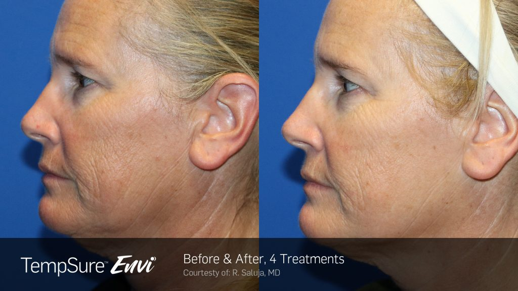 Before and after image for TempSure Envi